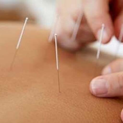 La acupuntura en las mejores manos - ACMA - Médicos acupuntores en Madrid