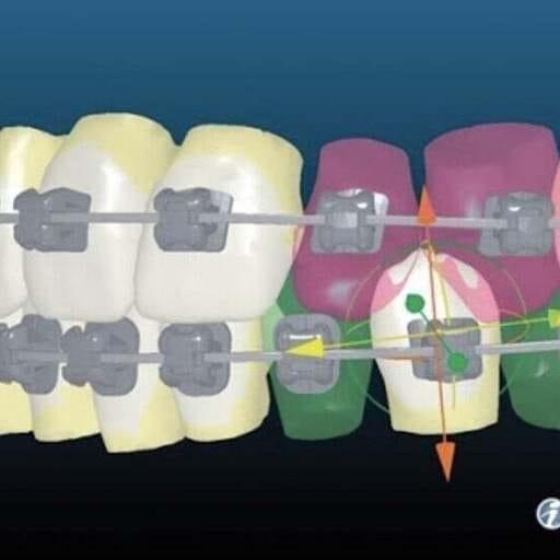 Salud y estética, la mejor combinación para tu boca - José Carlos Clavero, ortodoncista en Málaga.